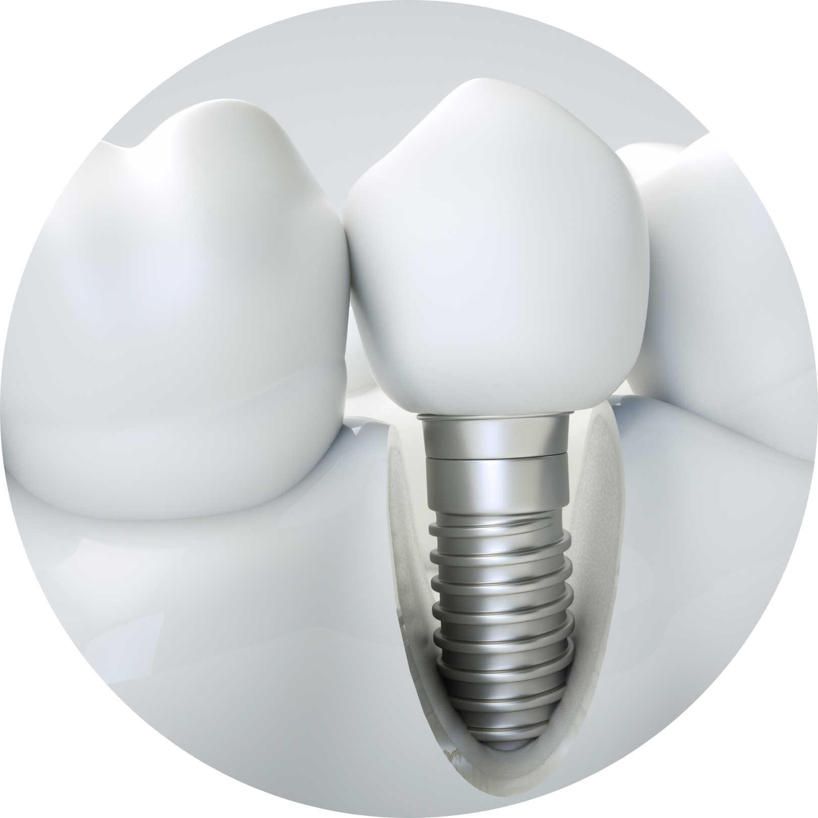 dental-implants-st-clair-dentist