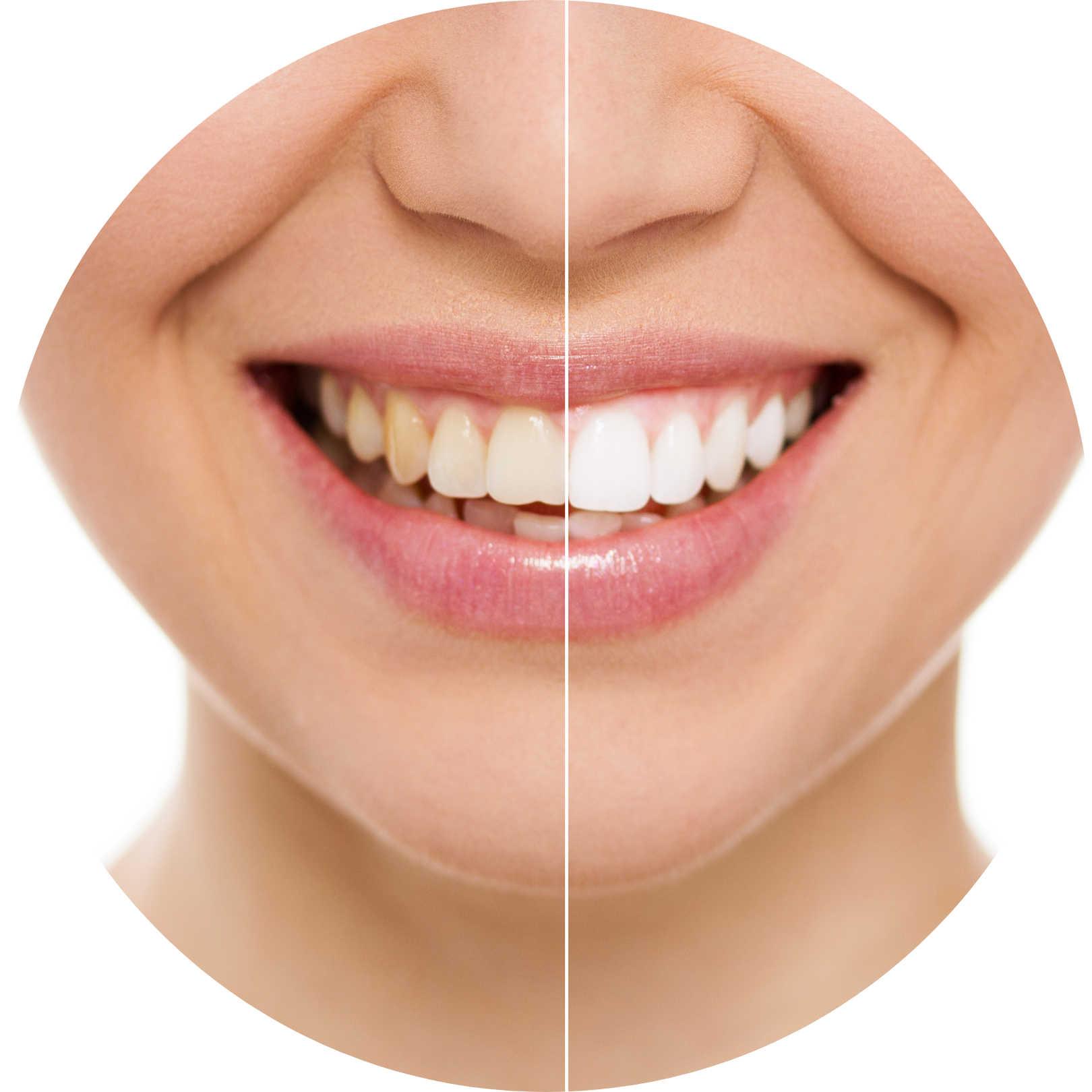 teeth-whitening-st-clair-dentist