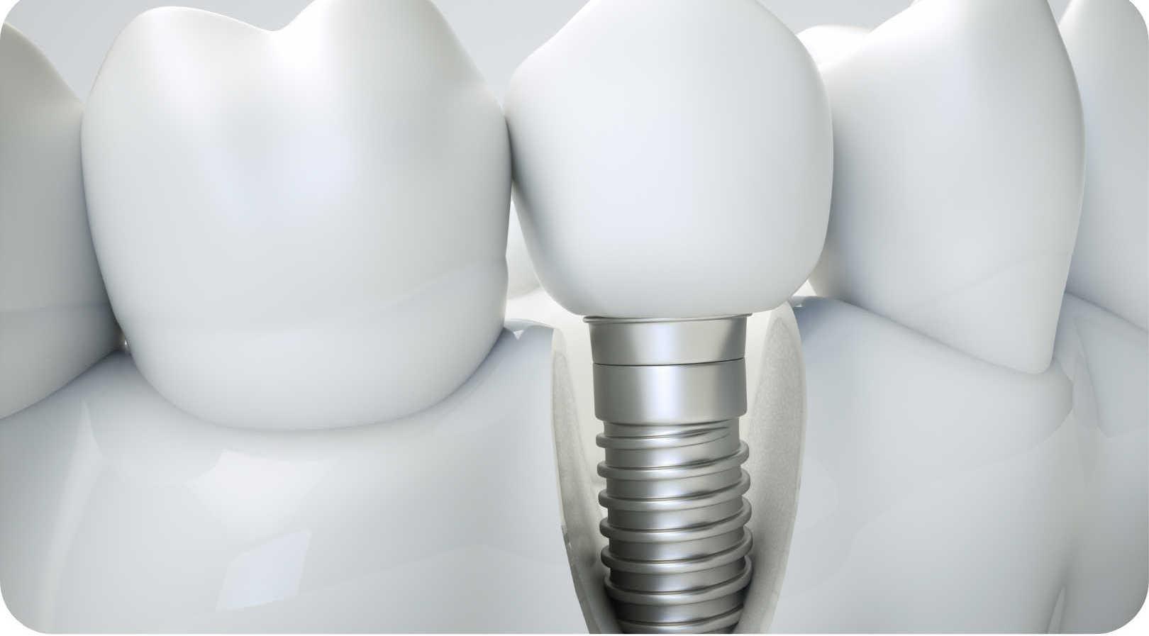 Dental implants at St Clair Family Dental