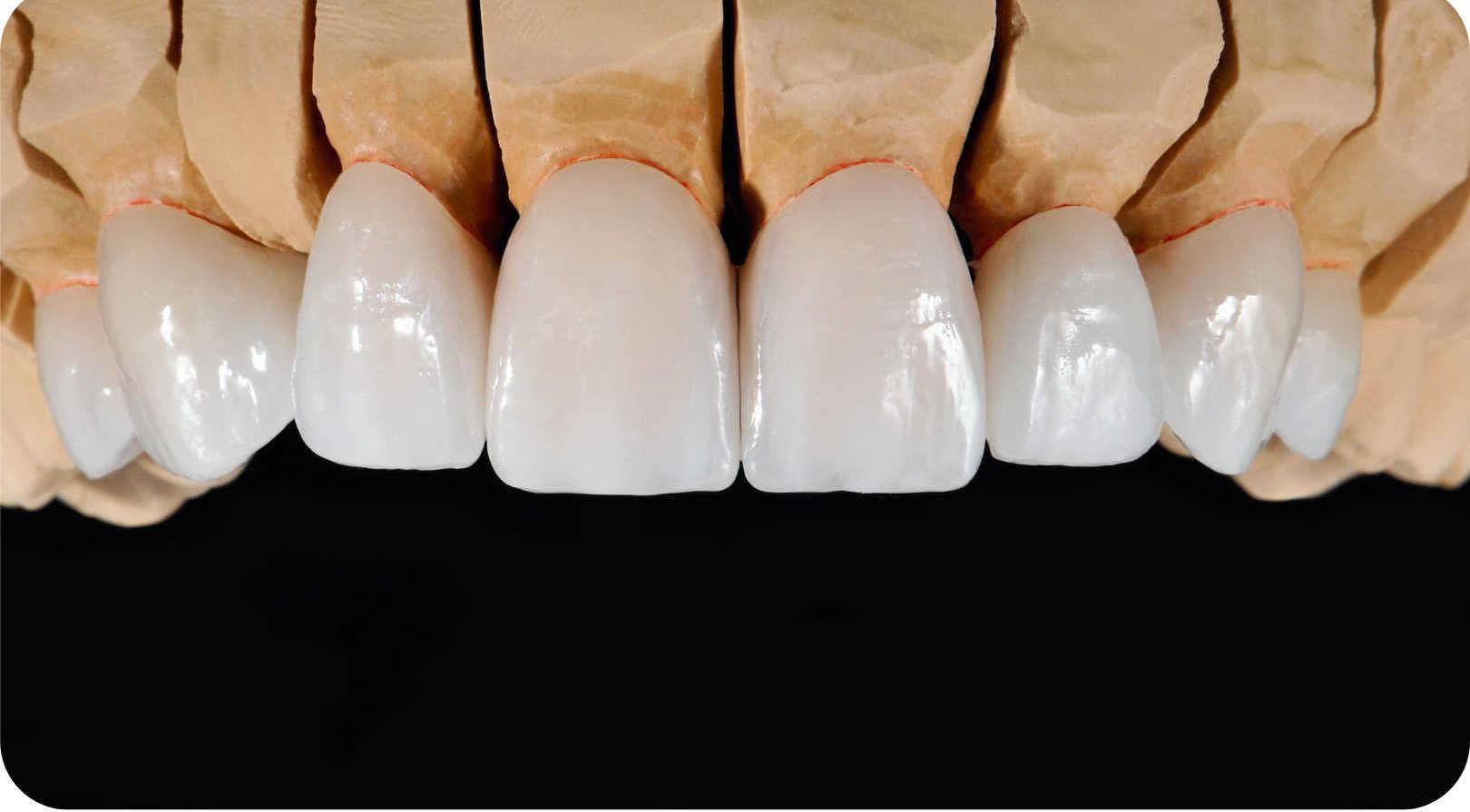Dental veneers at St Clair Family Dental