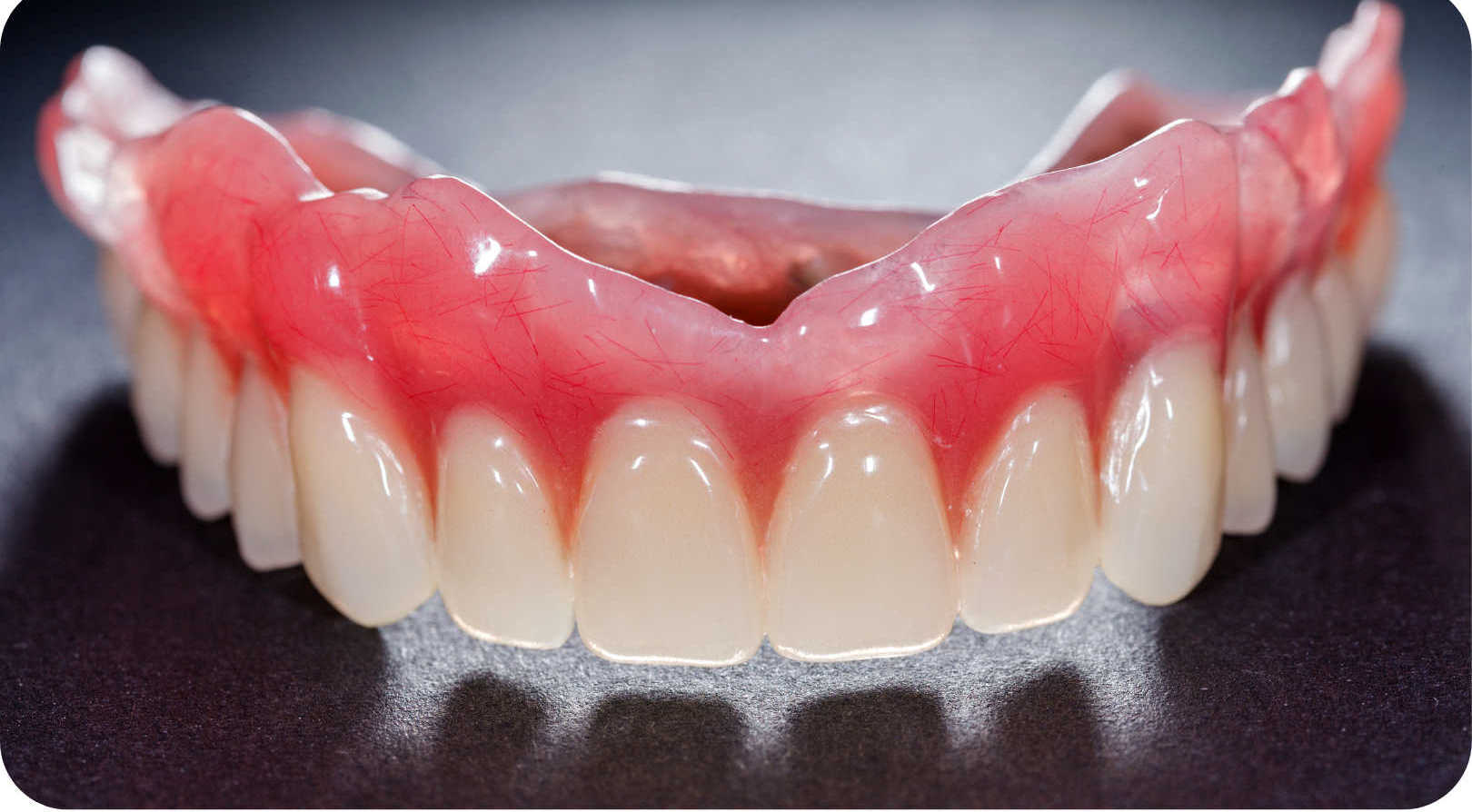 Dentures at St Clair Family Dental