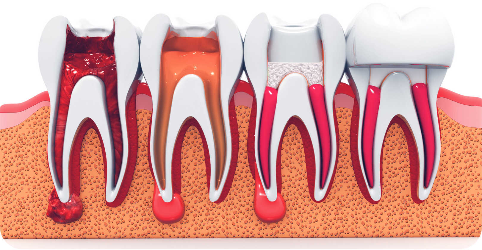 Root canal therapy at St Clair Family Dental