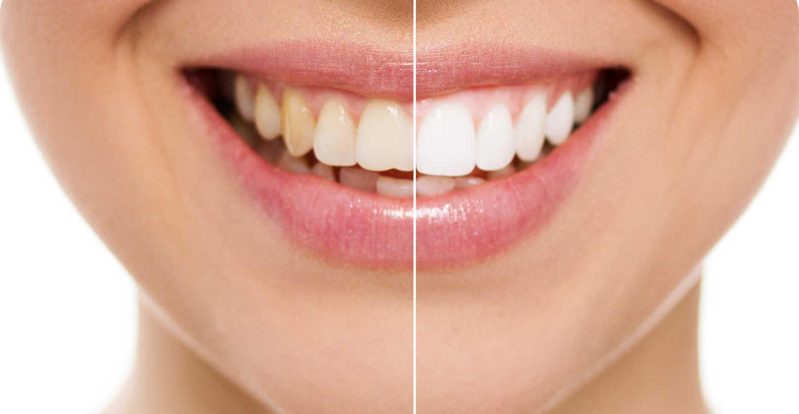 Teeth whitening at St Clair Family Dental